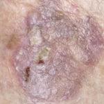 Lichenoid-keratosis