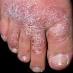 Chronic plaque psoriasis is a condition in which epithelial cells are over produced and form a well-defined site. The redness is often covered with silvery scales of skin. The cause of this type of psoriasis is unknown, but some inheritance factor has been reported, as has a connection with stress disorders. Treatment is normally by palliative creams based on coal tar, although some acute cases are treated with drugs.