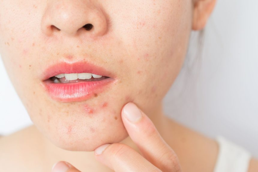 woman with acne on her chin