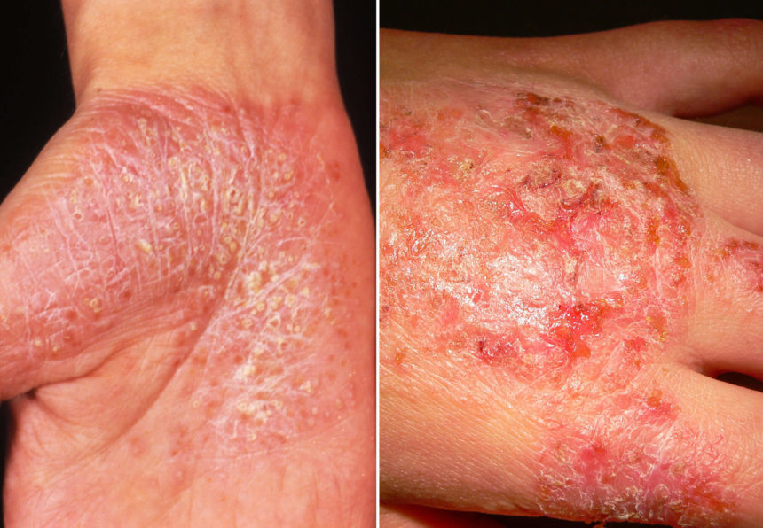 psoriasis eczema