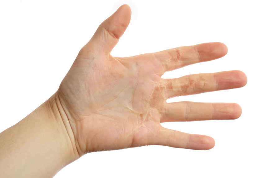 palm of hand showing burn scar and leukoderma