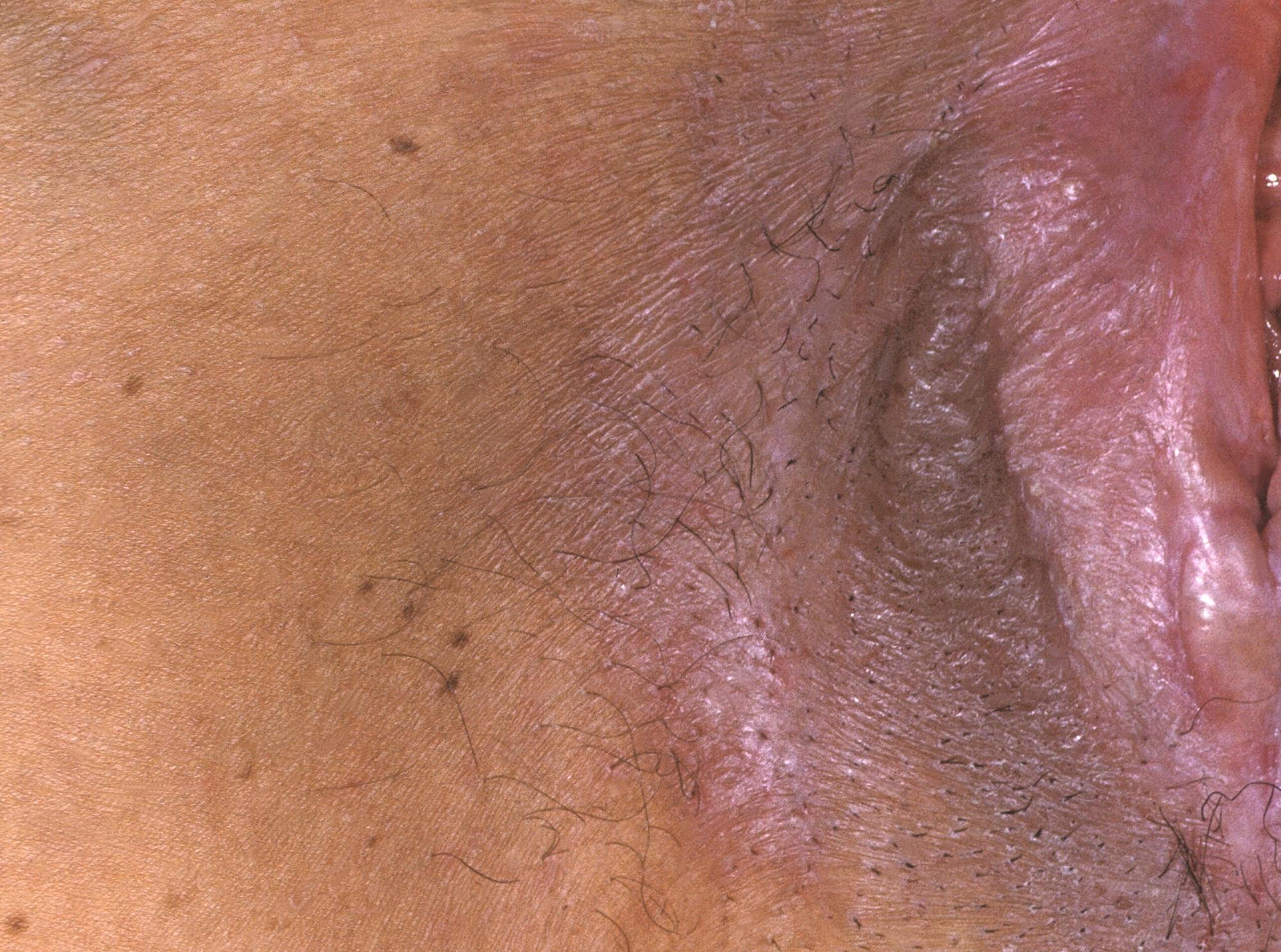 Emerging Treatments for Vulvar Lichen Sclerosus Offer