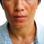 melasma woman face