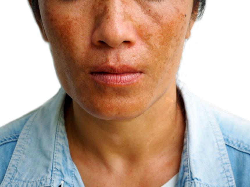 melasma woman face