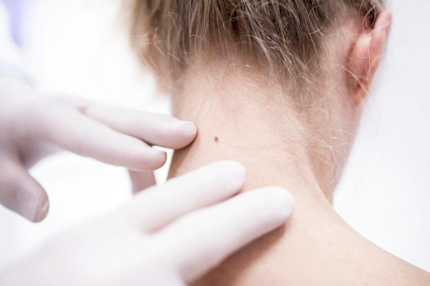 A recent study documents a downward trend in melanoma incidence in adolescents and young adults, but experts disagree about the causes.