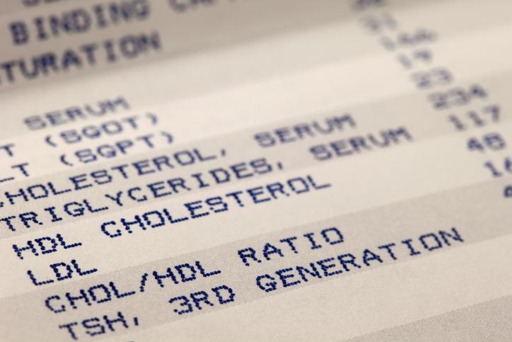 cholesterol blood test