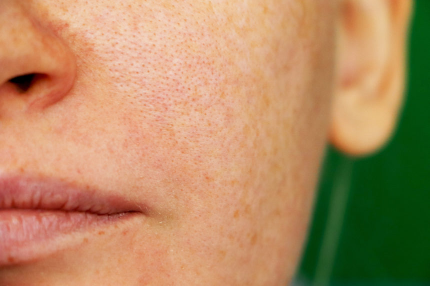 melasma hyperpigmentation on cheek of a woman
