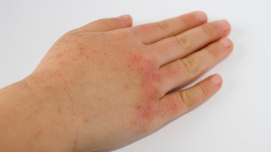 Right hand of child with skin inflammation