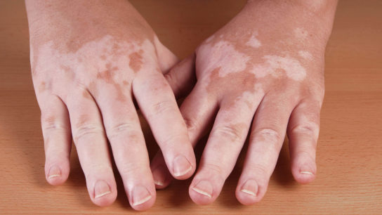 Many patients with vitiligo undergo multiple courses of phototherapy, which may raise concerns about their risk of photocarcinogenesis.
