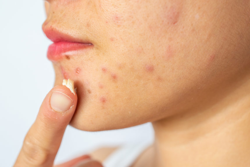 woman with acne applying cream to her face.