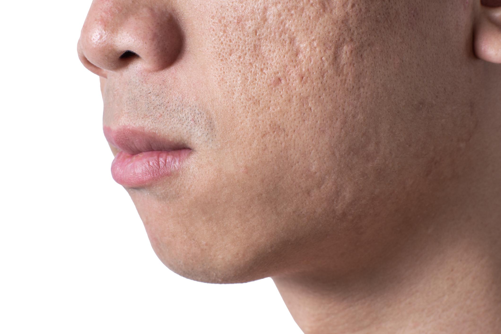 Chemical Reconstruction Plus Fractionated Nonablative Laser Improves Appearance Of Acne Scars Dermatology Advisor