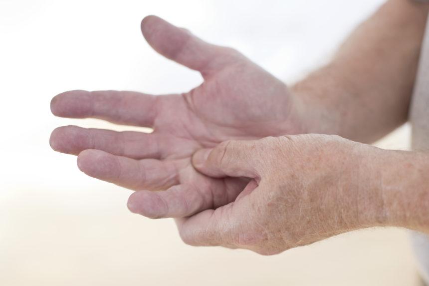 arthritis in the hand