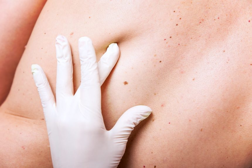Screening a back for melanoma.
