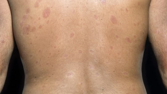 patient with diffuse systemic sclerosis