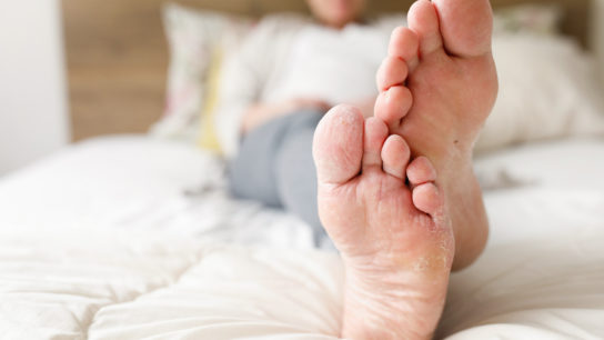 fungal infection foot athlete's foot