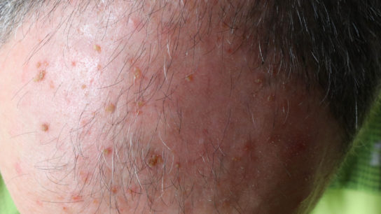 actinic keratosis in head of a man
