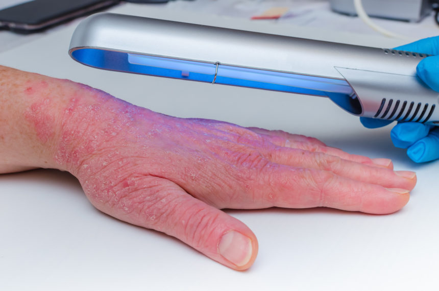 UVB therapy hand ultraviolet