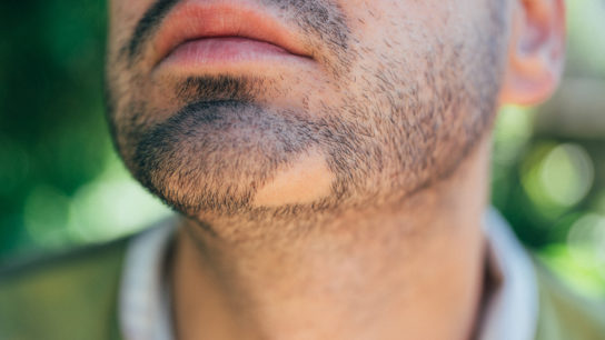 alopecia areata beard