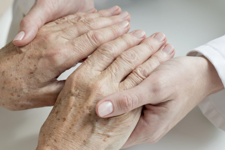 elderly mature old patient hands age spots
