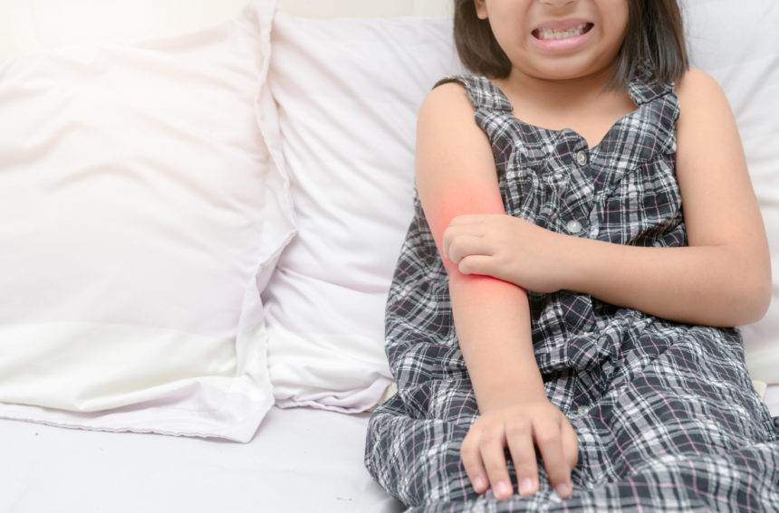psoriasis itch child girl