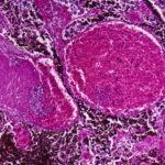 Photomicrograph of a lymph node showing malignant melanoma.